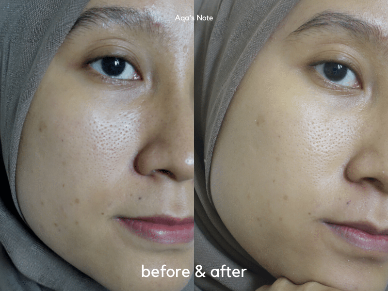 Reverie Touch Rubber Mask Before & After