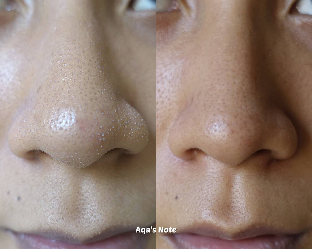 ORYN SKINCARE results