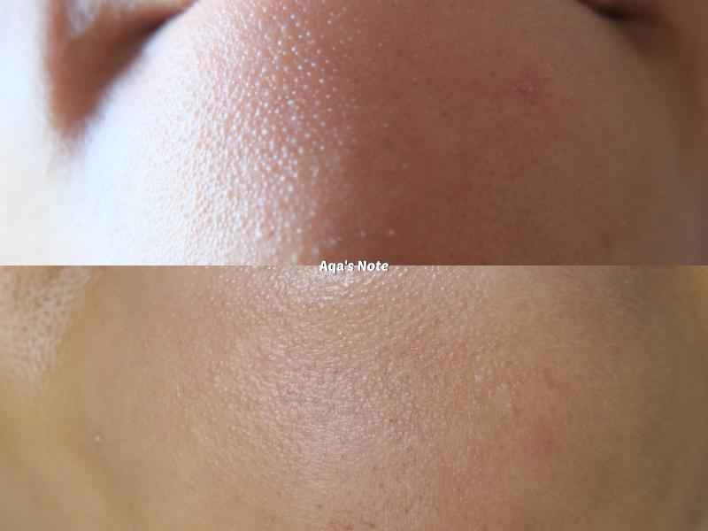 alluskin results aqalili azizan chin